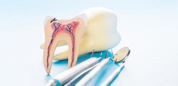 Endodonti - Kök Kanalı Tedavileri